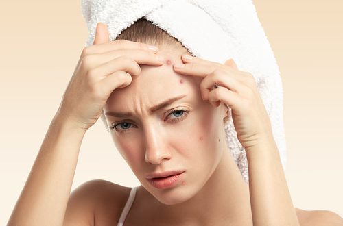 Woman with pimples_How to Get Rid of Pimples Fast