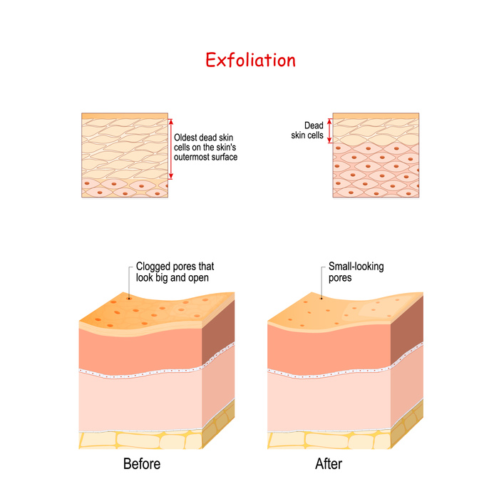 Skin layers before and after Exfoliation